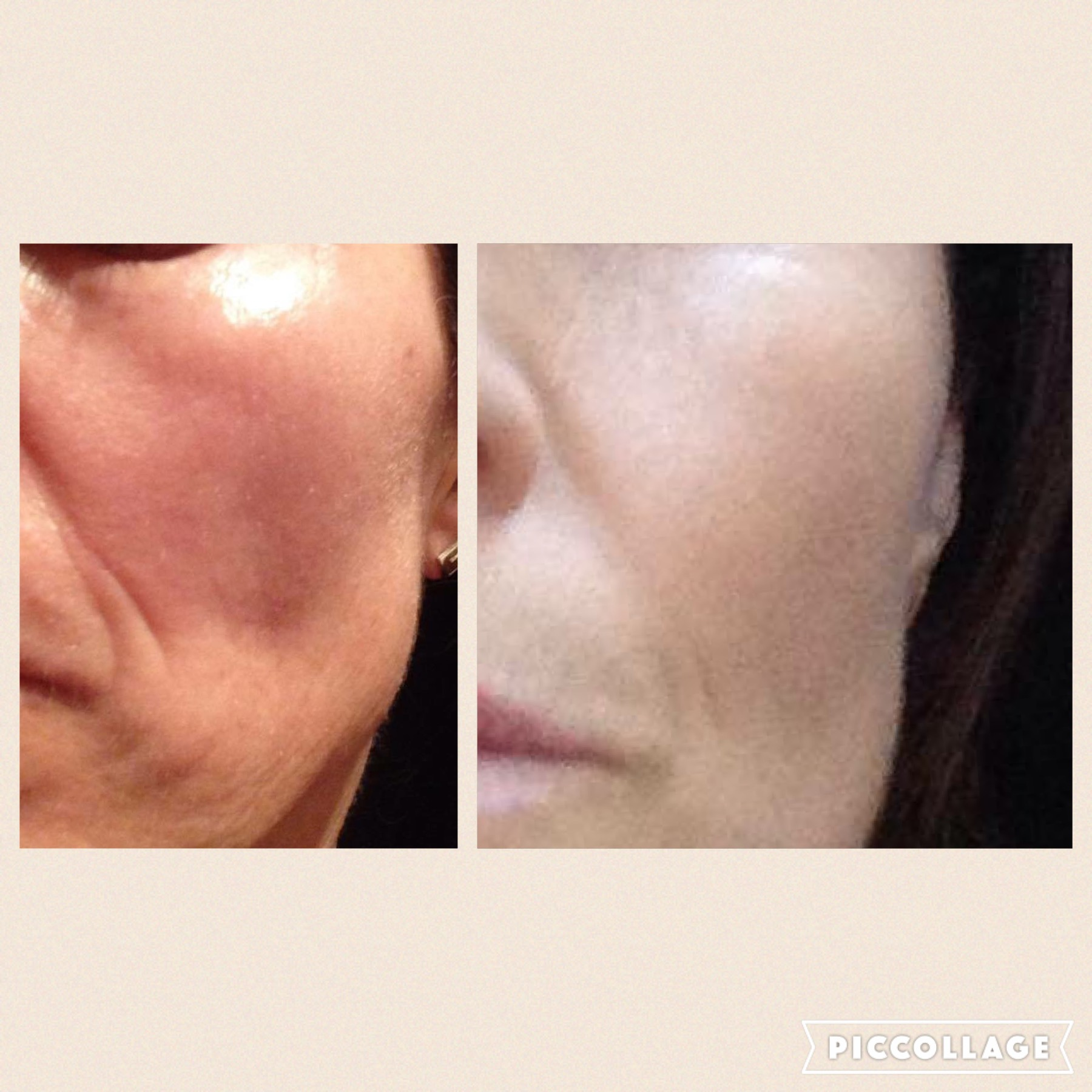 Microneedling - All you need to know!! - Mrs Makeup